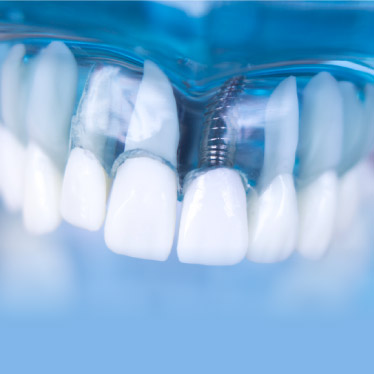 Dental Implants provided by Periodontal Associates