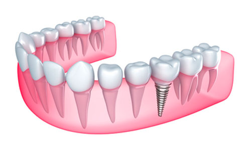 Can I Get Dental Implants if My Gums Are Receding?